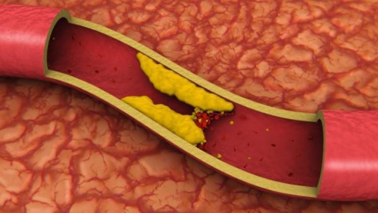 कोलेस्टेरोल के हाे ? यी हुन् खराब कोलेस्टेरोल घटाउने ६ खाना