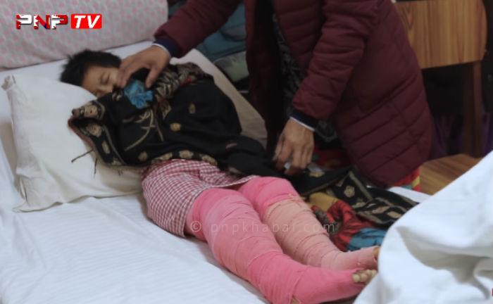 शरीर भरि आगो लागेर आर्थिक अभावले हस्पिटलमा छटपट्टिदै यी ८ वर्षिया बालिका (भिडियो)