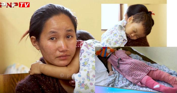 तातो दुधमा डुबेर दुई वर्षीय बालकको दर्दनाक अबस्था, आमाले रुँदै मागिन उपचारका लागि सहयोगको गुहार