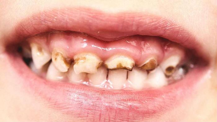 दाँतमा किरा लाग्यो ? अपनाउनुहोस् यी घरेलु उपाय